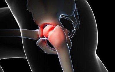 Piriformis Syndrome: It's a Pain In the Butt, Hip, and Leg